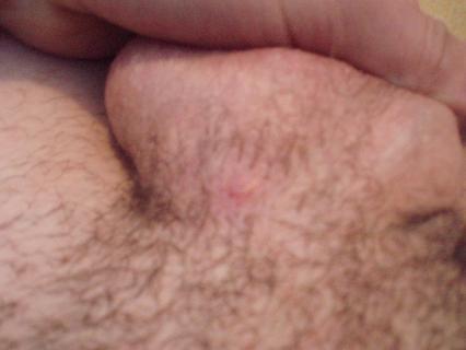 syfilis na penise